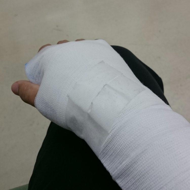 手首捻挫 治療後